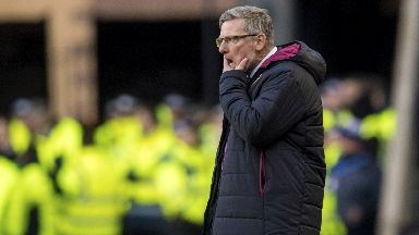 Frustrated: Craig Levein rued the penalty call and goalkeeping error which turned the tie Celtic's way.