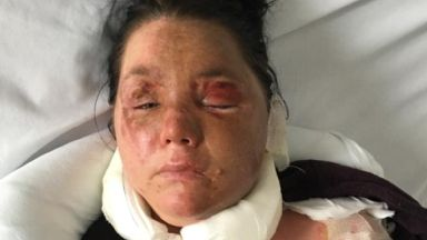 Victim: Man threw acid over her. Teresa McCann