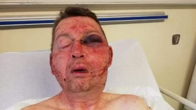 Attack: Paul McGregor was struck with an axe. Glasgow's Provanmill