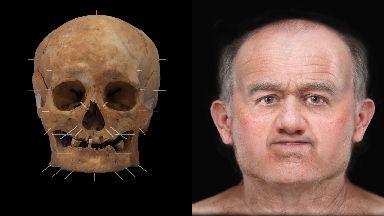 Skeleton 125