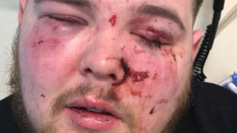 Man suffers fractured cheekbones in nightclub atta