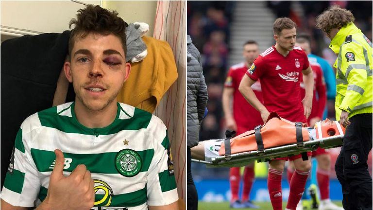 Ryan Christie to undergo surgery for facial fractures